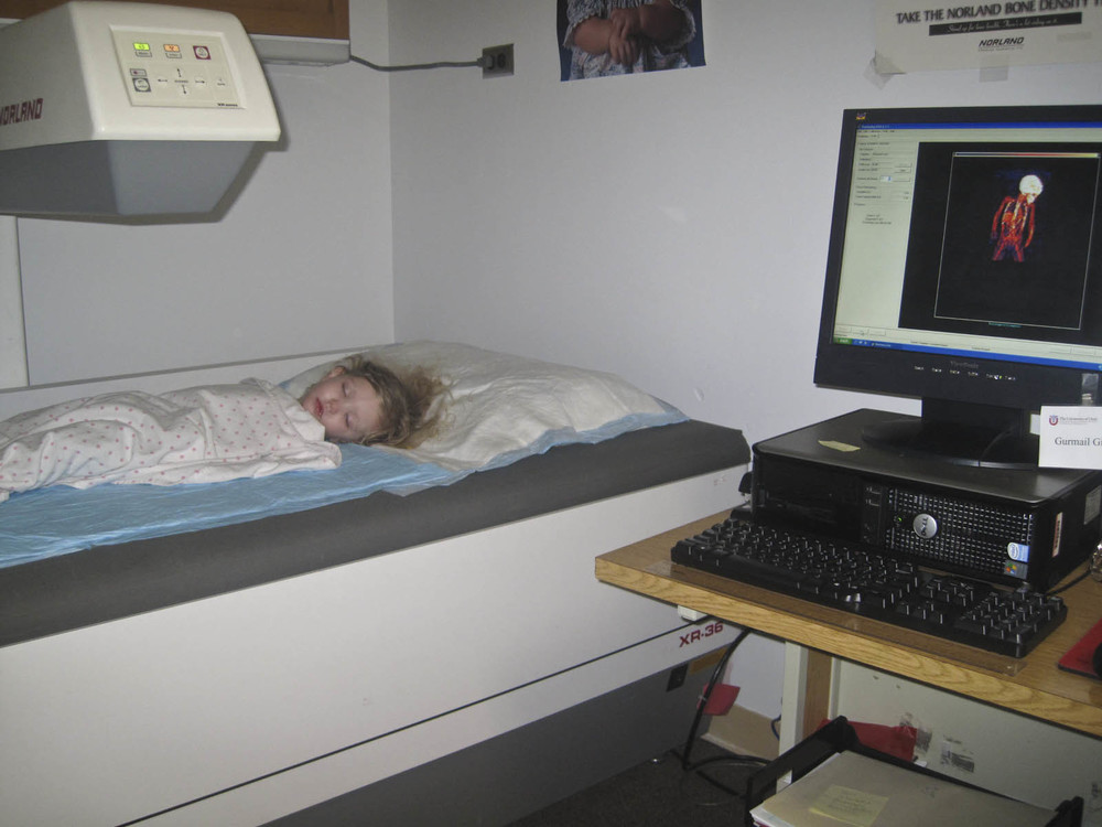 bone density scan.JPG