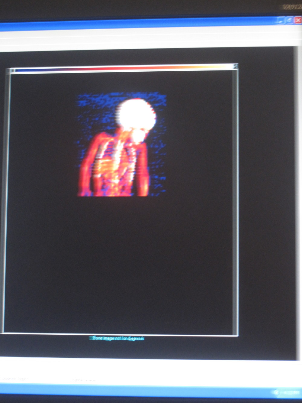 Brooke's DEXA scan in progress...