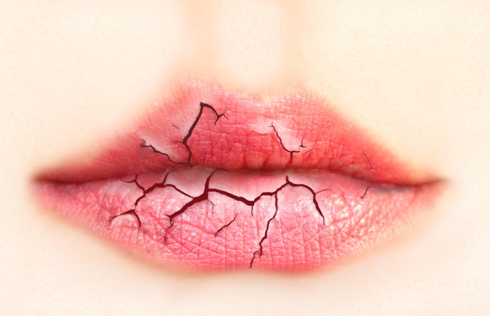labios-rachados.jpg
