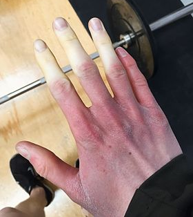 A view of hands during a Raynaud's attack.