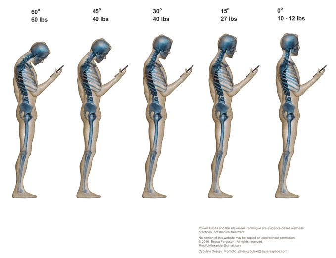 image gracieuseté de :http://www.mindfulat.com/text-neck-iposture-issues/