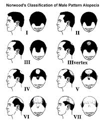 Guide to Hair Restoration - Norwood Classification of Male Pattern Alopecia via www.BernsteinMedical.com
