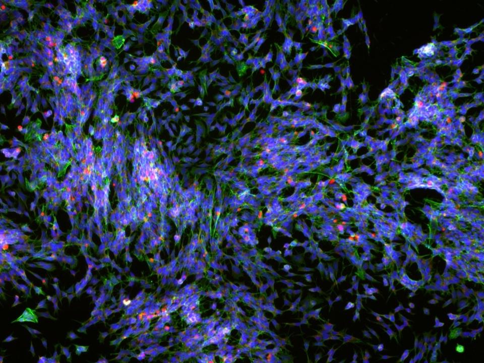 10-18-18 neuronal cells.jpg