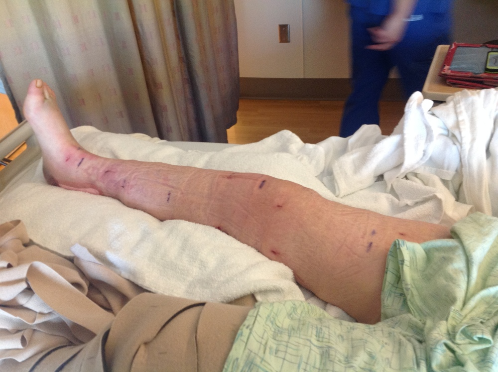 Right leg after Suction Assisted Protein Lipectomy by Dr. Jay Granzow.