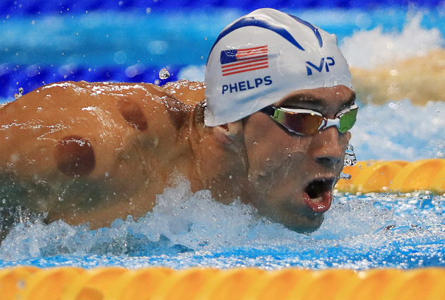 Michael Phelps showing off his cupping marks at the 2016 Olympic Games in Rio.