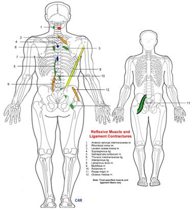 C4R Spondylogenic Reflex Pattern