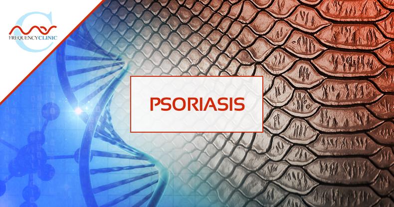 mas-sajady-program-reviews-frequency-psoriasis.png
