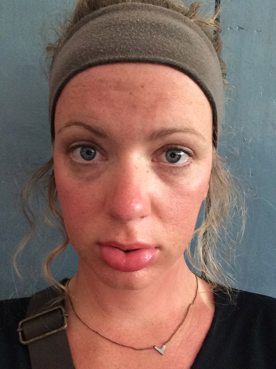 The only sunburn I've gotten in SE Asia...on my lips. Apparently I didn't put enough sunscreen on them and they swelled to twice their size. My celeb status just rose to B list.