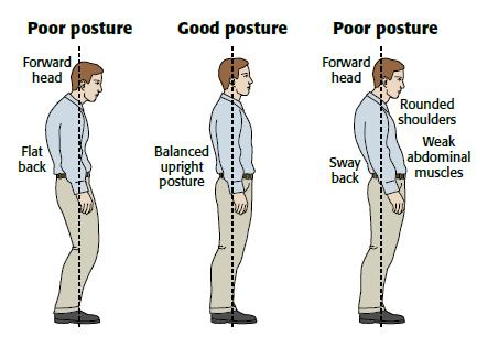 Image result for poor posture spine
