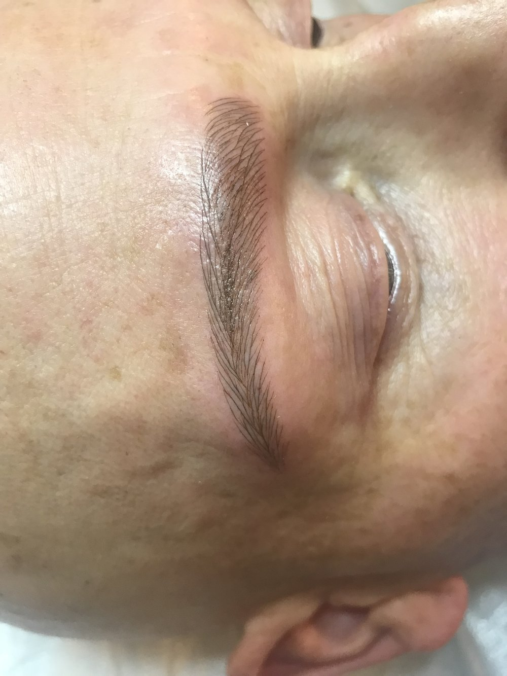 Alopecia Male/Microblading after