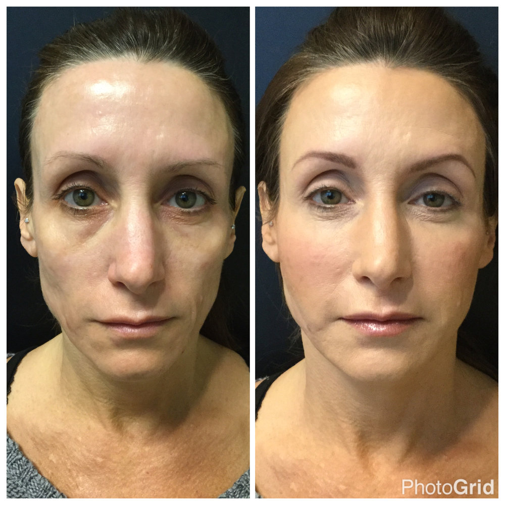 Before and After pics...Patient was injected with 3 vials of Voluma and 2 vials of sculptra. Beautiful, Right?
