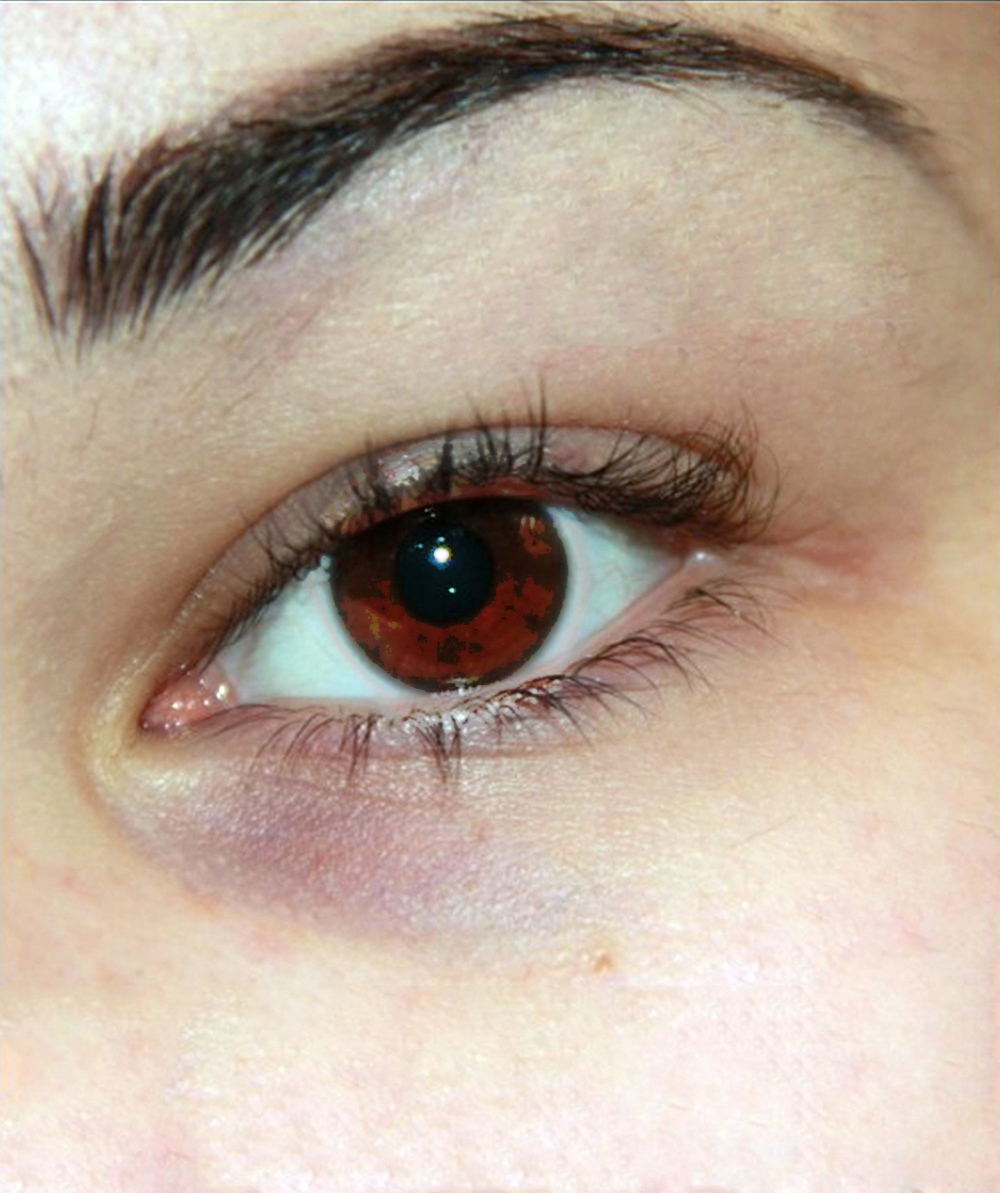how to fix dry skin around eyes