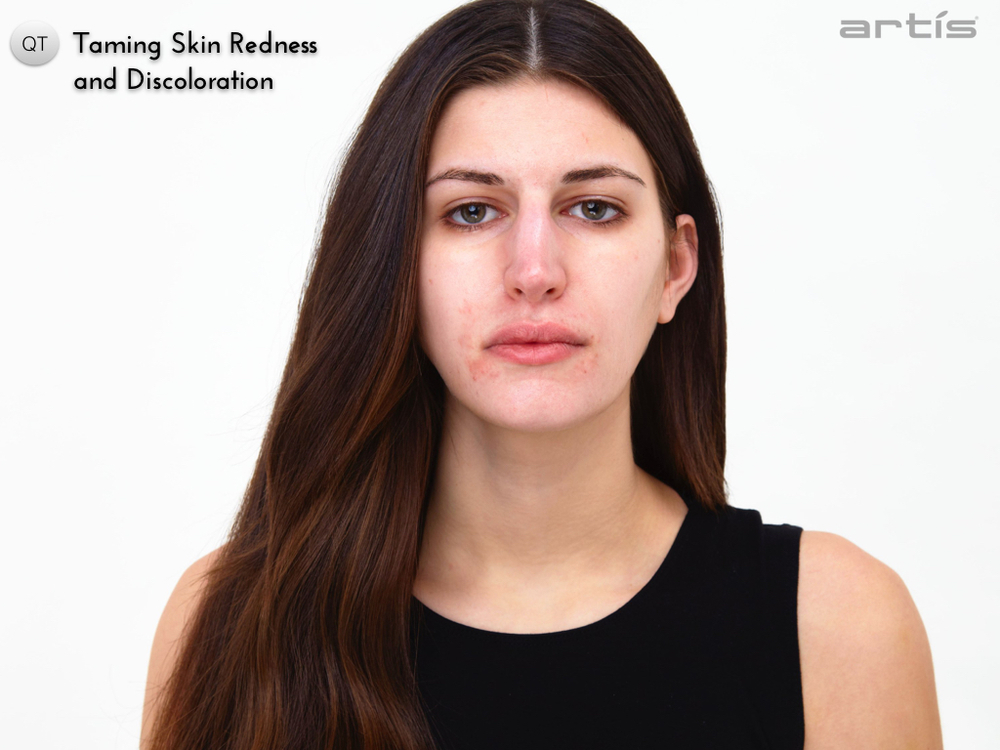 taming skin redness and discolouration.001.jpg