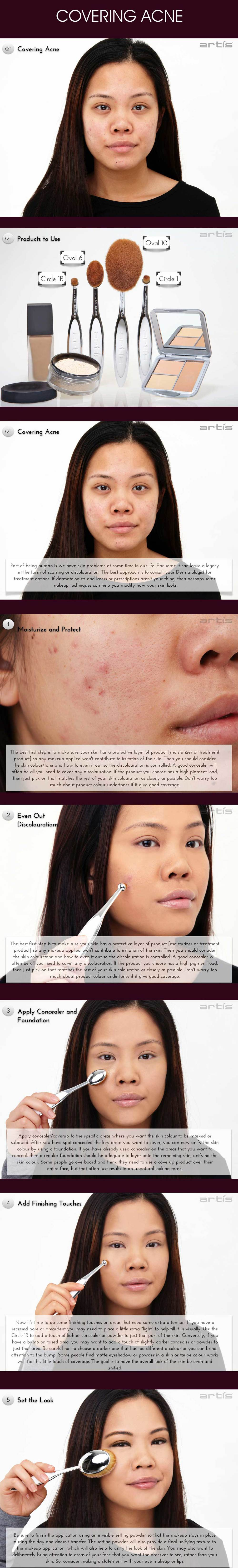 covering-acne-full-sequence.jpg