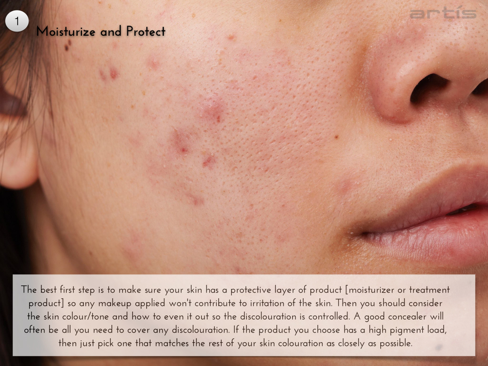 Covering Acne 004.001.jpg