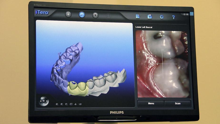 3D oral scanner.jpg