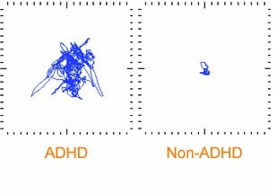 Example of a Movement Comparison of the Non-ADHD and ADHD child using the Quotient™ System Report example movement comparison