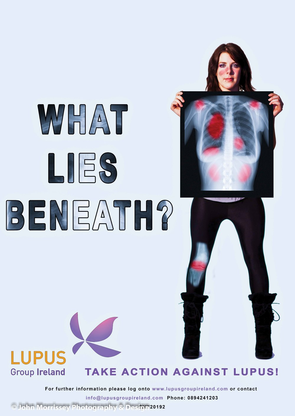Lupus Awareness Month 2013 Campaign Poster (1).