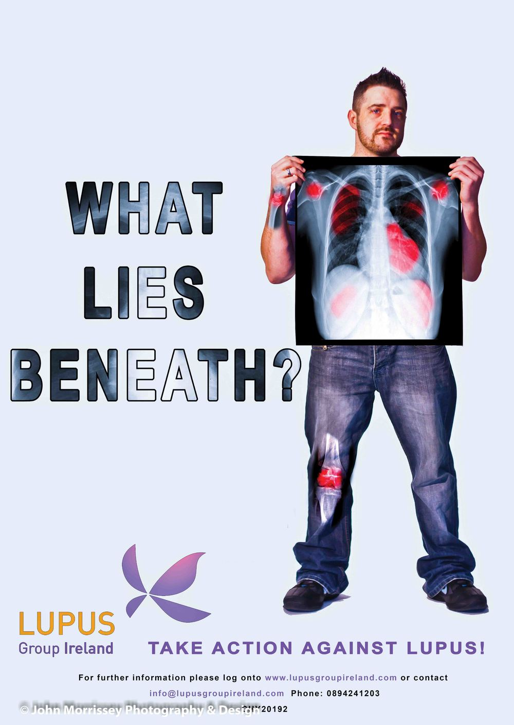 Lupus Awareness Month 2013 Campaign Poster (2).