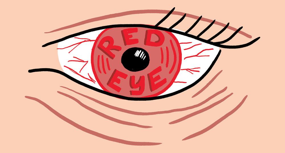 049-RedEye.jpg