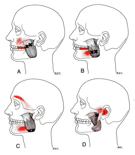 best-treatment-for tmj