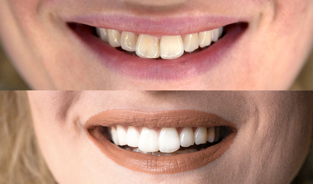 Smile Brilliant_Before After.jpg