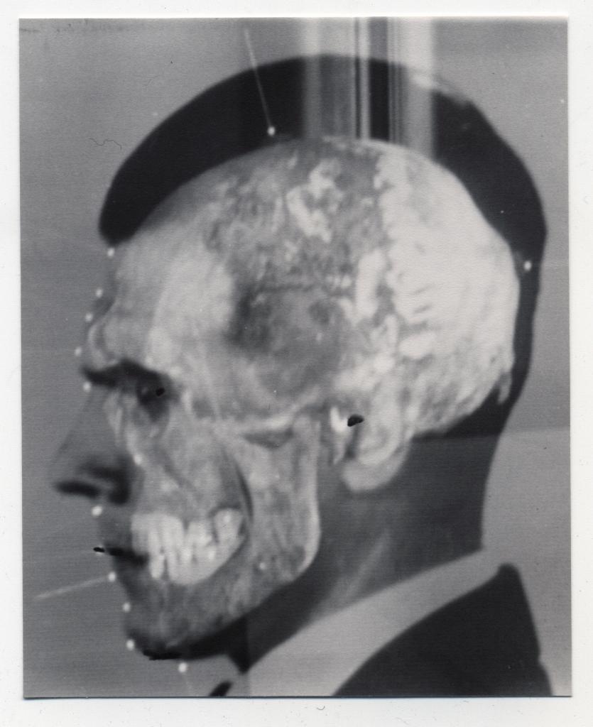 """1895 - Il cranio di Mengele, il """"processo alle ossa"""". Montaggio video prodotto usando fotografie di Mengele e del suo cranio nella dimostrazione per sovrapposizione di Richard Helmer, Medical- Legal Institute Labs, San Paolo, Brasile, giugno 1985. ©Richard Helmer, courtesy Maja Helmer, 1985"""