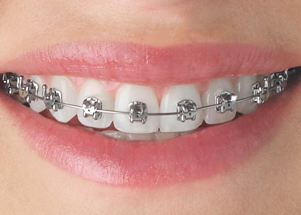 Kết quả hình ảnh cho Stainless steel dental orthodontic