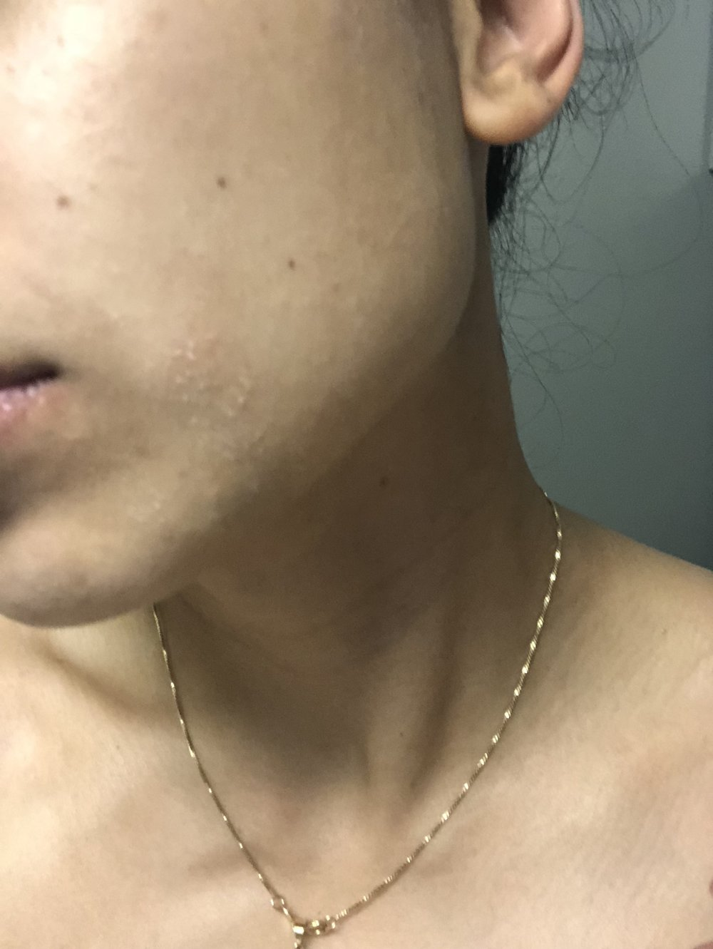 Eczema on the face
