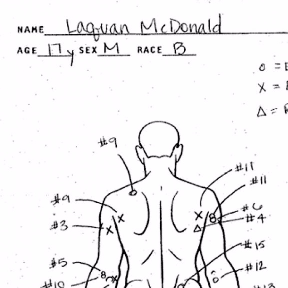 Autopsy of Laquan McDonald