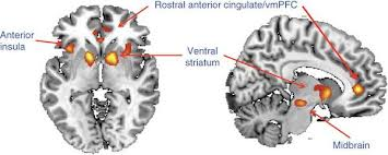 Activation of anterior cingulate, anterior insula, and ventral striatum in a functional MRI scan.