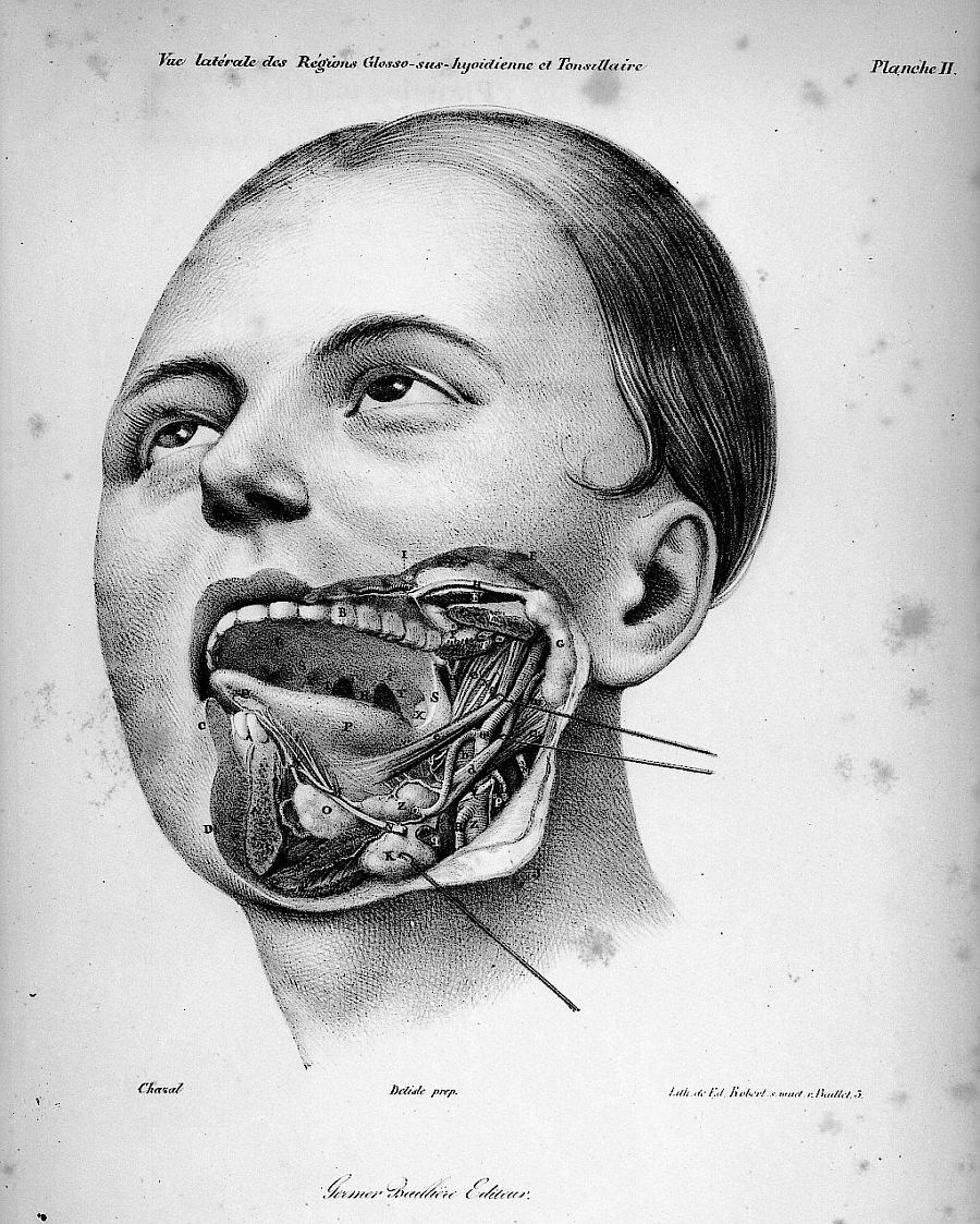 sutured-infection :     From Philippe-Frédéric Blandin's  Treaty of Topographical Anatomy, 1834