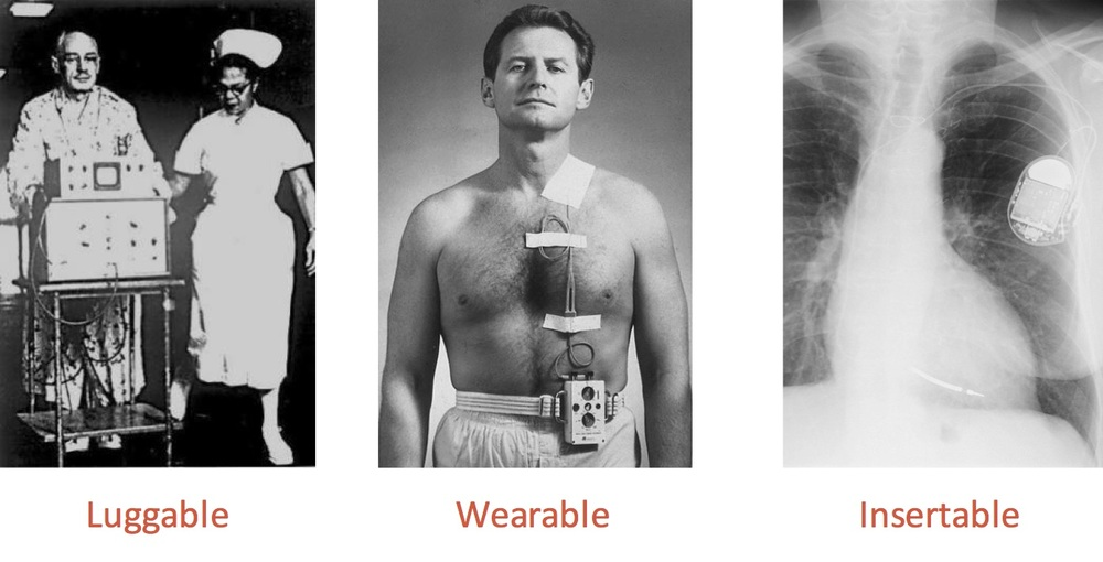 The pacemaker was once luggable, then wearable, before becoming fully inserted into the human bod