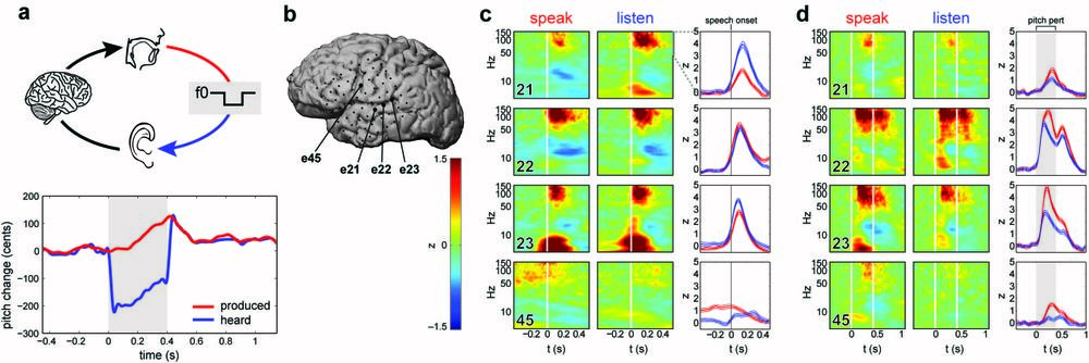 When we speak, we also hear ourselves. This auditory feedback is not only critical for speech learning and maintenance, but also for the online control of everyday speech. When sensory feedback is altered, we make immediate corrective adjustments to our speech to compensate for those changes. In this study, we demonstrate how the human auditory cortex plays a critical role in guiding the motor cortex to make those corrective movements during vocalization. We introduced a novel methodology of real-time pitch perturbation in awake, behaving clinical patients with implanted intracranial electrodes. Our recordings allowed an unprecedented level of spatiotemporal resolution to dissect sub-components of the auditory system at the single-trial level. We showed that the auditory cortex is strongly modulated by one's own speech: perturbation of expected acoustic feedback results in a significant enhancement of neural activity in a posterior temporal region that is specialized for sensorimotor integration of speech. We found that this specific sensory enhancement was directly correlated with subsequent compensatory vocal changes.