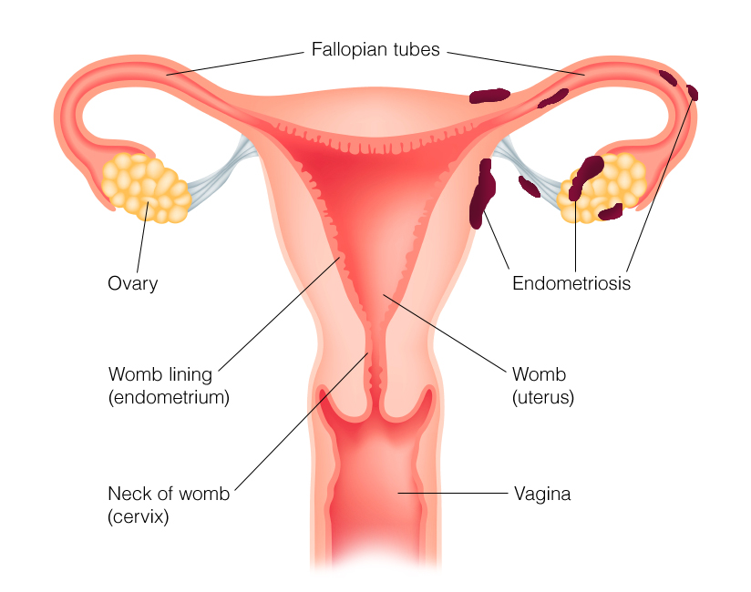 Common sites for endometriosis include the ovaries, fallopian tubes, vagina, cervix and Pouch of Douglas