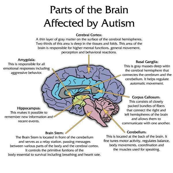 Autism Behaviors Show Unique Brain >> What Is Autism Autism Radio