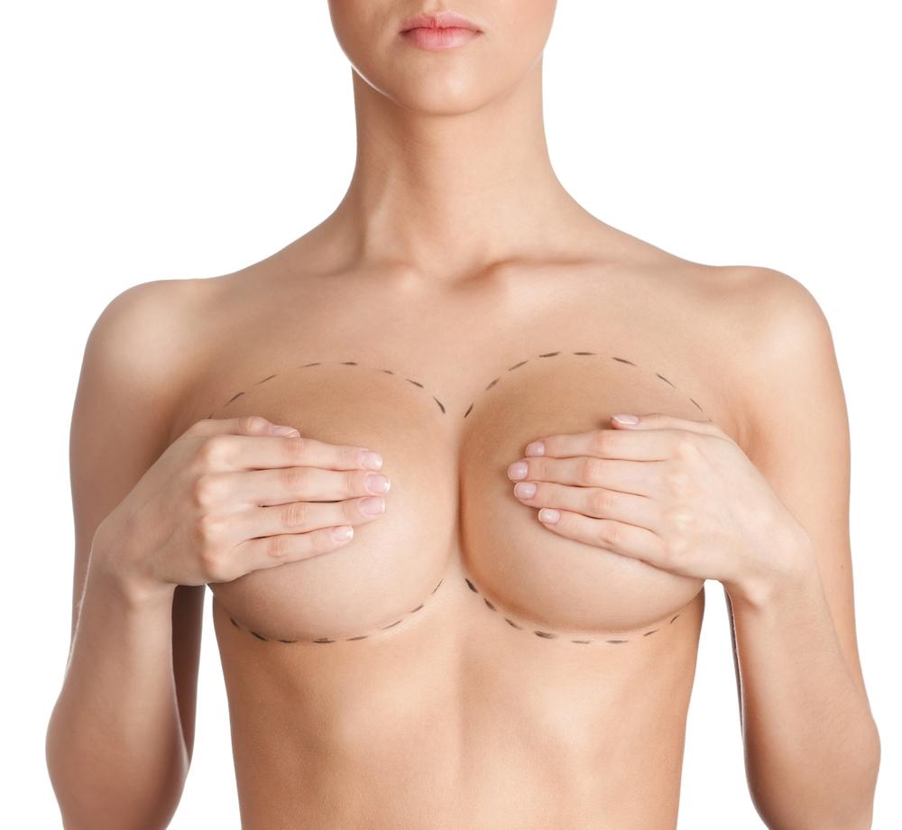 El aumento mamario puede ayudar a dar la silueta ideal
