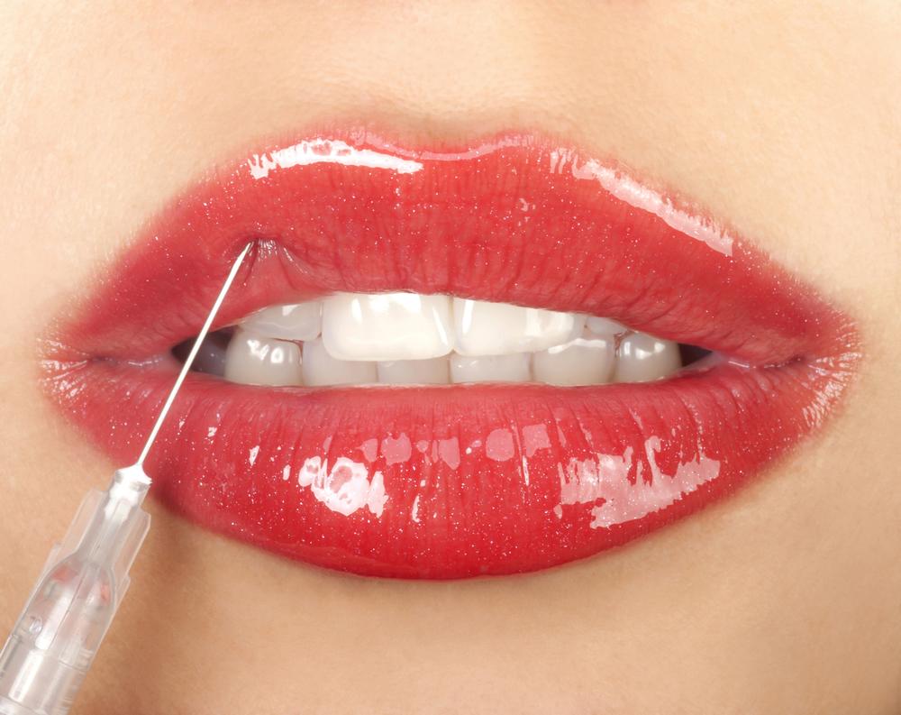 El aumento de labios es uno de los más solicitados.