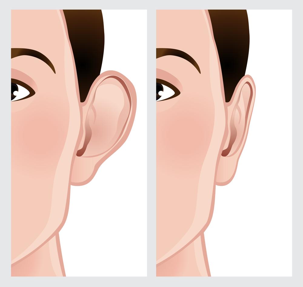 La otoplastía permite corregir el contorno de las orejas de una manera sencilla y segura.