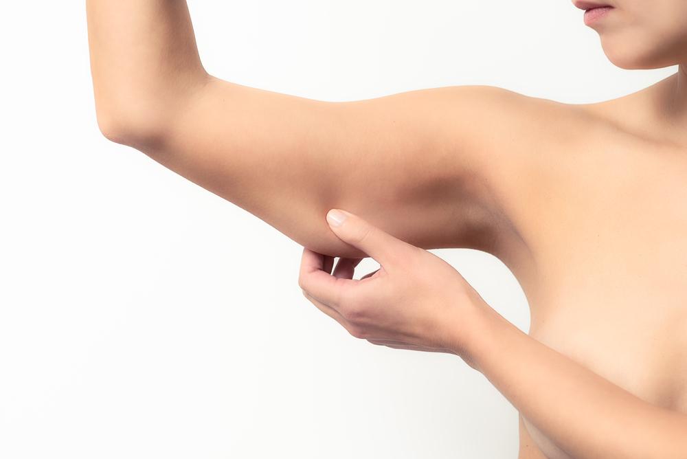 Los brazos colgantes se pueden corregir, solo requiere mucho cuidado en la recuperación.