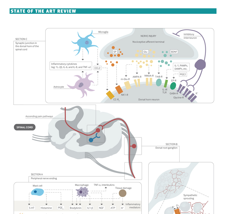 Neuropathic pain: mechanisms and their clinical implications For the British Journal of Medicine Medium: Digital © Aoki | Anatomize Medical Media Inc.