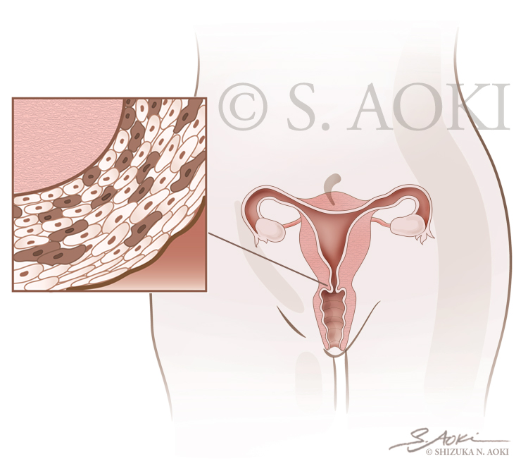 Aoki_Colposcopy-procedure-thumbnail.jpg