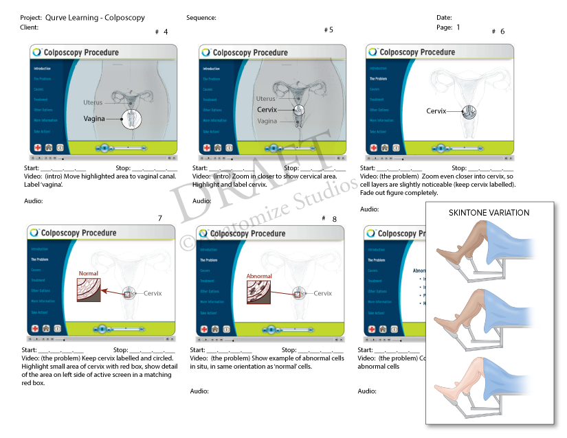 QurveLearning-Colposcopy-Storyboard(revised).png