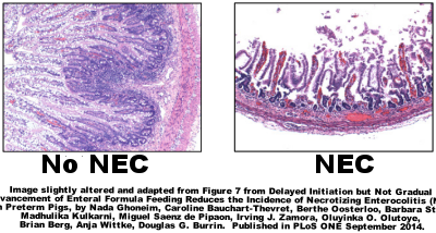 Pig Ileum with and without NEC.  Figure taken from different study.