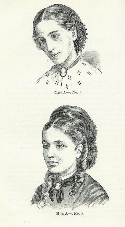 Sketches of Miss A before (top) and after (bottom) treatment for anorexia nervosa by William Withey Gull.  Dr. Gull was among the first people to be clinically establish and treat anorexia, and was responsible for naming the disease.