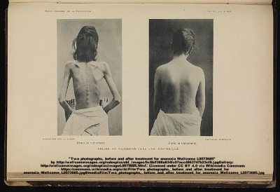 Two photographs, before and after treatment for anorexia