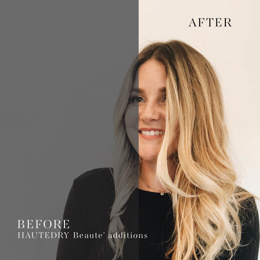 beforeandafterextensions