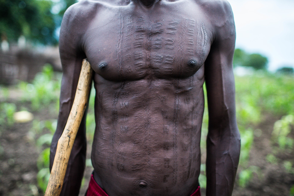 Tribal scars cover the body of a local Murle man in Gumuruk, Jonglei State, South Sudan. While the Murle have long been active participants in tribal tensions, waging their own raids and attacks on rival tribes, the worry now  is selective and brutal treatment of Murle by the SPLA.