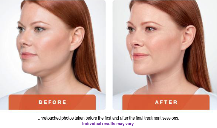 A before and after result for Kybella to eliminate submental, or under the chin, fat. Source: Allergan.