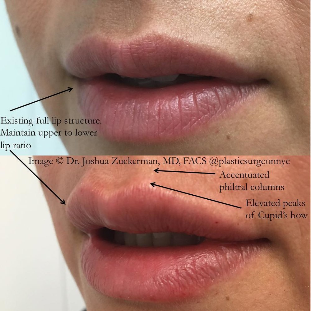 A before and after result of a lip augmentation patient of Dr. Zuckerman's.